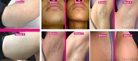 Laziskin IPL Hair Removal results